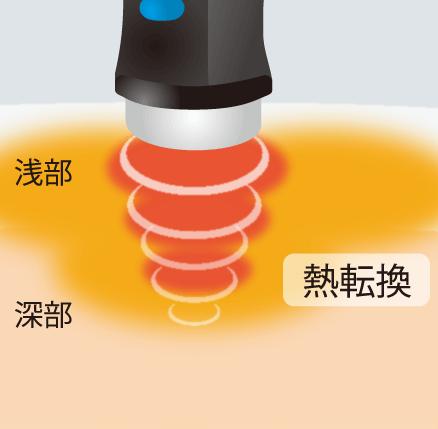 深部の患部も立体的に直接温める立体加温