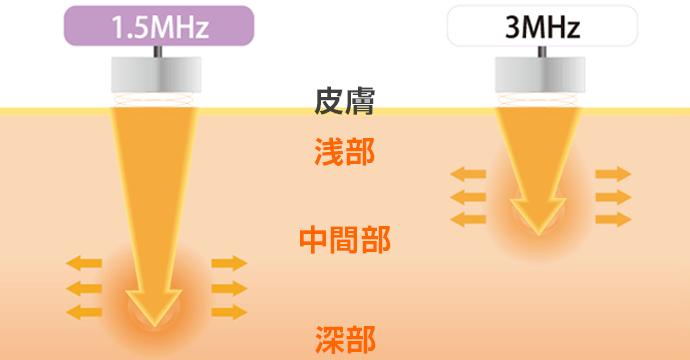 深部から浅部まで適切に対応する1.5MHz・3MHzプローブ